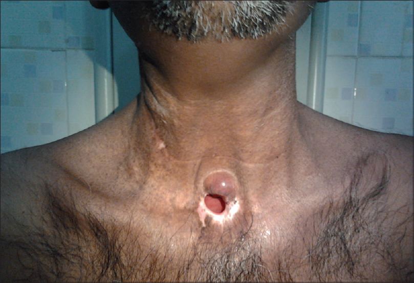 Metastatic cancer head and neck, Introduction - Metastatic cancer neck