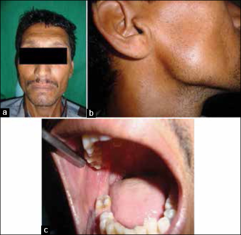 Figure 1: (a) The front profile clinical picture of the patient (b) Side profile clinical picture of the patient showing a bony mass on the right tonsillar fossa region (c) Intraoral clinical picture showing missing 46 and 48, with a carious 47
