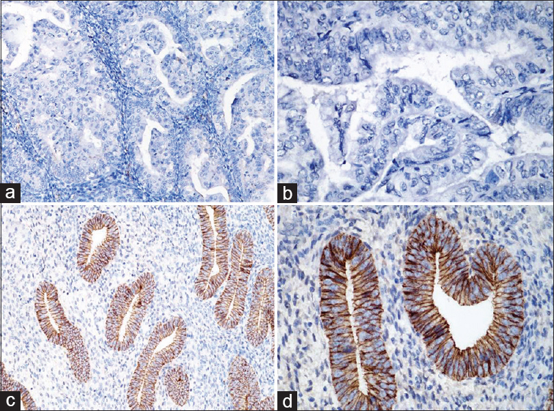 Figure 2: E-cadherin protein expression in different endometrium tissues. (a) Endometrioid adenocarcinoma tissue ×200; (b) endometrioid adenocarcinoma tissue ×400; (c) Normal endometrium tissue ×200; (d) normal endometrium tissue ×400