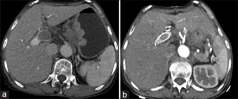 Figure 2: A female patient, 72-year-old, had portal vein cancer patients with thrombus and received line radiofrequency ablation and stent implantation. After 2 months, enhanced computed tomography review of the upper abdominal showed stent patency (within the stent to strengthen the blood flow signal), and cancer bolt disappeared. (a) Preoperative enhanced computed tomography images; (b) postoperative enhanced computed tomography images