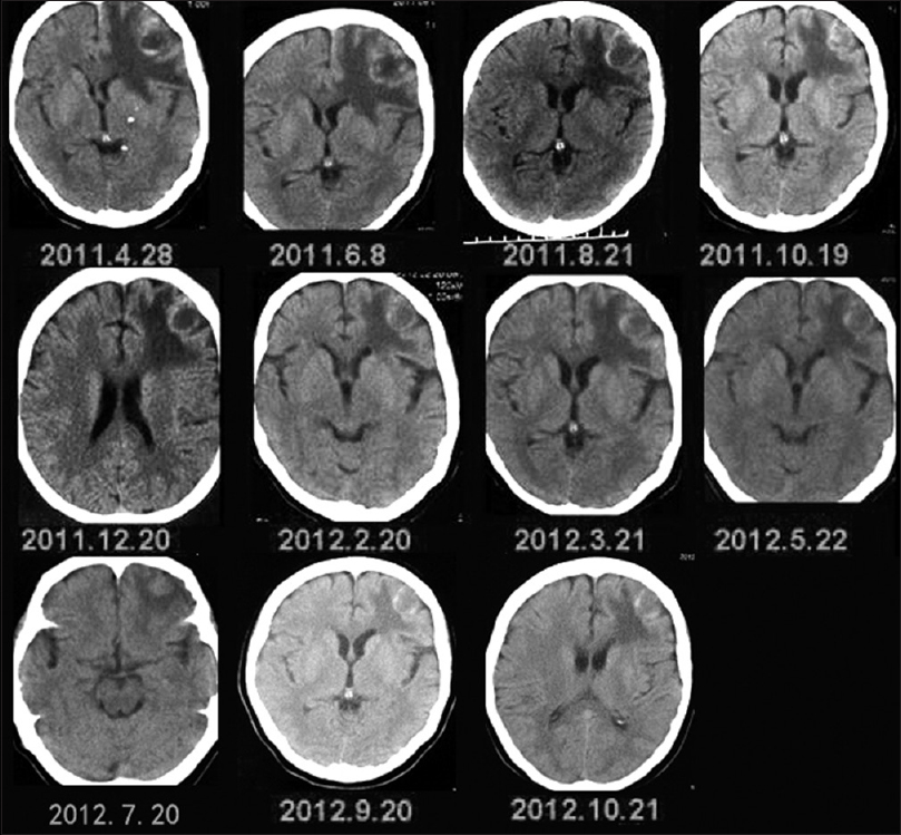 Symptomatic Treatment Of Brain Metastases In Renal Cell Carcinoma With Sorafenib Hu D Hu Y Li J Wang X J Can Res Ther