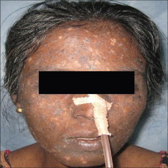 Figure 2: Multiple hyper and hypopigmented patches on the face of the patient