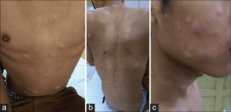 Multiple Subcutaneous Metastases As The Solitary Presenting Site Of Colorectal Cancer Nallathambi C Singh Iy Patton Z J Can Res Ther