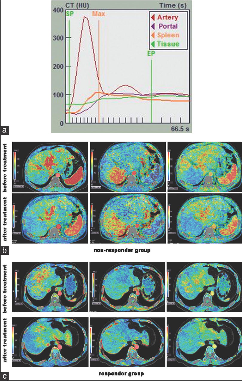 Liver computed tomographic perfusion for monitoring the early