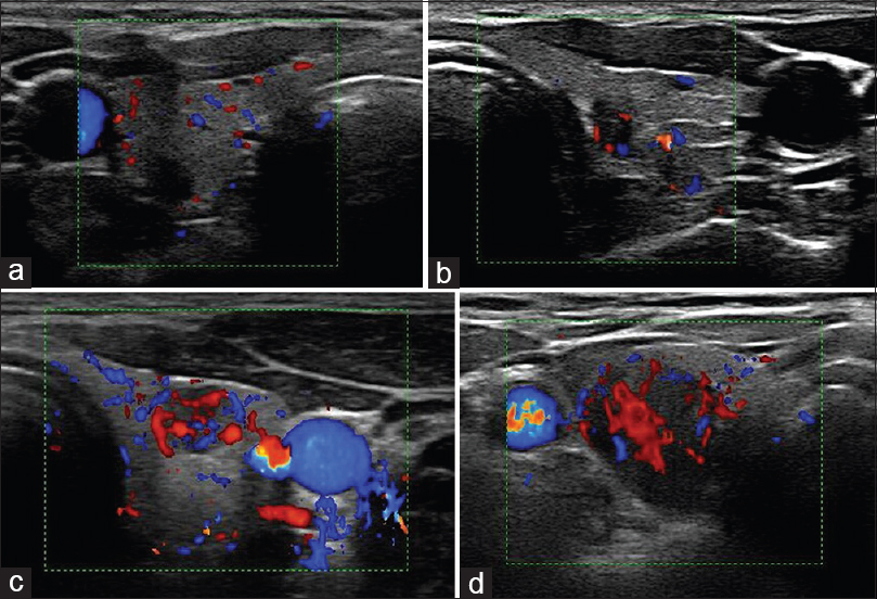 Ultrasonography Is Valuable In Evaluation Of Papillary Thyroid