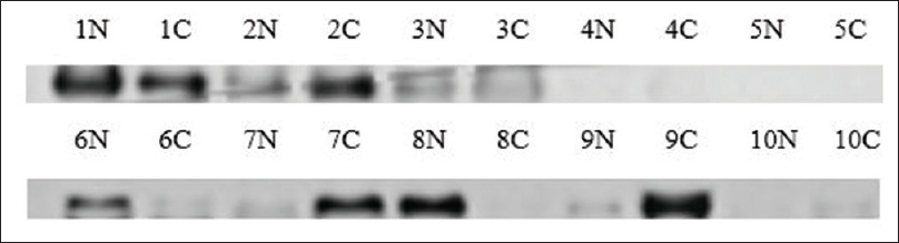 Figure 4: Western-blot analysis of Vimentin. Ten micrograms of each protein sample 1–10; N: Normal tissue; C: Cancer tissue was used. Rabbit anti-Vimentin antibody (Abcam), HRP-conjugated goat anti-rabbit IgM (Abcam) and SuperSignal West Pico Chemiluminescent Substrate (Thermo Fisher) were applied