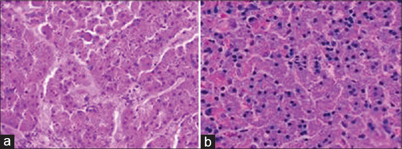 Figure 5: (a) In Group B, the pancreatic structure is completely disrupted and hardly recognizable, and membranous structure dissolution. Examples of histology (H and E, ×200). (b) Inflammatory cell (in lymphocytes, monocyte-like cell-based) infiltration surrounding the damaged area were observed. Examples of histology (H and E, ×200)