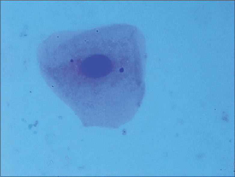 Figure 3: Leishman Giemsa cocktail stained smear (×100)