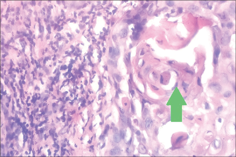 Figure 5: Histopathological image of a tissue section of well-differentiated oral squamous cell carcinoma showing cannibalistic cell (green arrow). The section also shows grade 3 worst pattern of invasion and grade 1 lymphocytic response (H and E, ×400)