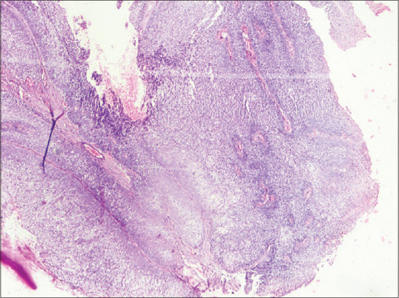 Figure 4: H and E stained sections scanner view (4 x)