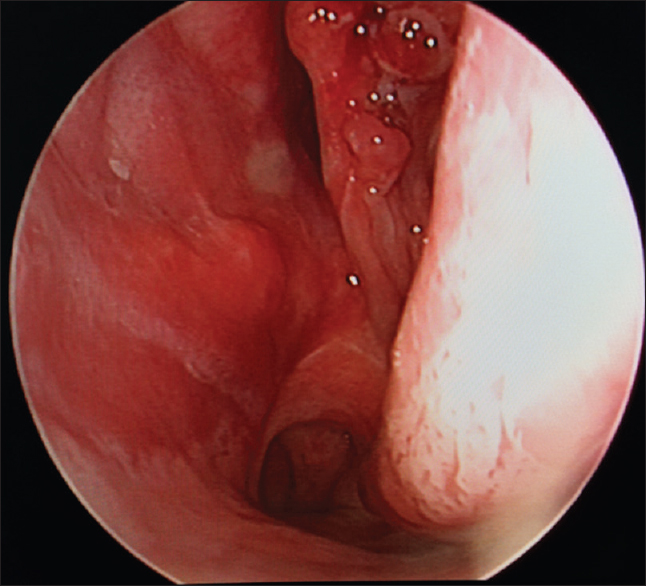 Figure 4: Intraoperative endoscopic picture showing left nasal cavity free of mass