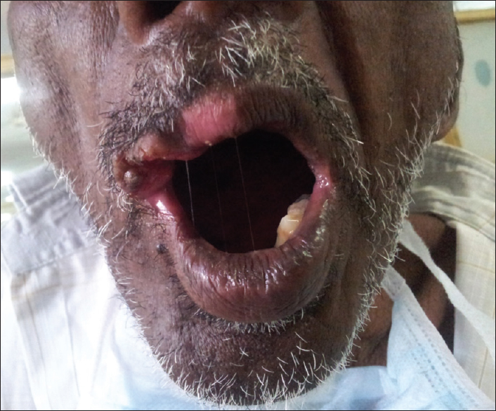 Figure 1: Clinical photograph of the lip lesion