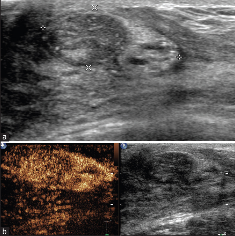 Figure 4: Contrast-enhanced ultrasonography image of a hamartoma in the left breast of a 35-year-old female. (a) Heterogeneous lesion on conventional ultrasound; (b) Contrast-enhanced ultrasonography image showed the enhancement pattern of hamartoma which was higher than that of the peripheral parenchyma, and the edge of the lesion was very clear