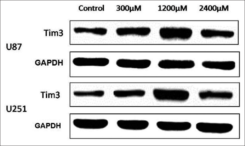Figure 4: Differential expression of Tim-3 was shown in glioma cell lines. Western blot analysis revealed that the protein level of Tim-3 in the high concentration group was significantly higher than in the others