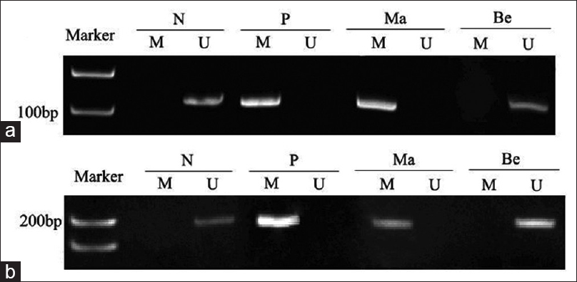 Figure 1: Methylation-specific polymerase chain reaction analysis for the methylation of RUNX3 (a) and RASSF1A (b) in solitary pulmonary nodule tissues. Genomic DNA from b solitary pulmonary nodule tissues treated with sodium bisulfite was amplified using methylated (M) and unmethylated primers (U). <i>P</i> was used as a positive control for methylated reaction, and N was used as a positive control for unmethylated reaction. Ma denotes malignant solitary pulmonary nodule and Be denotes benign solitary pulmonary nodule