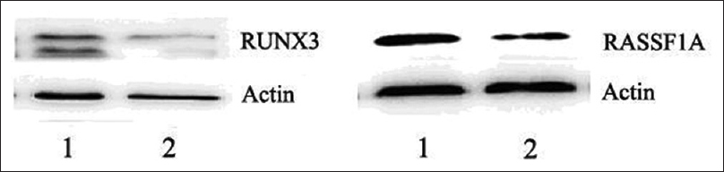 Figure 2: Expression of RUNX3 and RASSF1A in solitary pulmonary nodule tissues detected by western blot. Expression of the β-actin gene was used as internal control. The levels of RUNX3 and RASSF1A in malignant solitary pulmonary nodules decreased compared with that in benign solitary pulmonary nodules. Lane 1 displays benign solitary pulmonary nodule and lane 2 displays malignant solitary pulmonary nodule