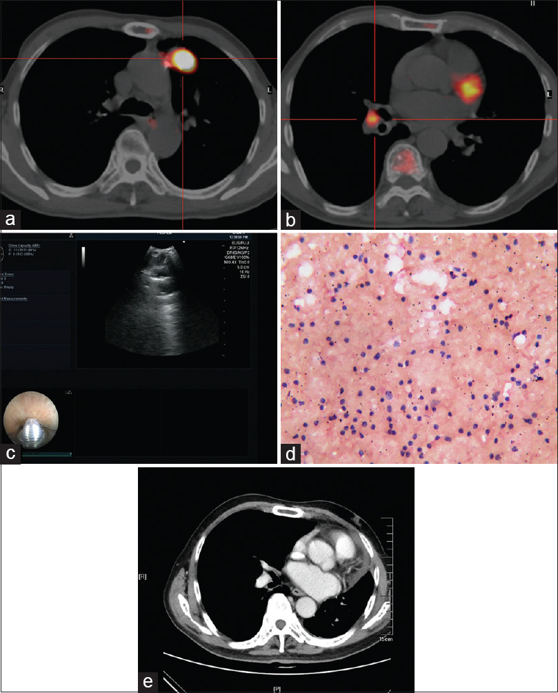 Figure 1: A 72-year-old male patient with lung cancer in the left upper lobe (a). PET/CT showed right interlobar LN enlargement and <sup>18</sup>F-fluorodeoxyglucose accumulation in the nodule (b). The maximum standard uptake value of the LN was 3.63. Endobronchial ultrasound-guided transbronchial needle aspiration (c) specimens contained abundant lymphocytes without malignant cells (hematoxylin and eosin, ×400) (d). The pathological findings of right superior lobectomy revealed adenocarcinoma. LN follow-up with image showed no evidence of malignancy (e).