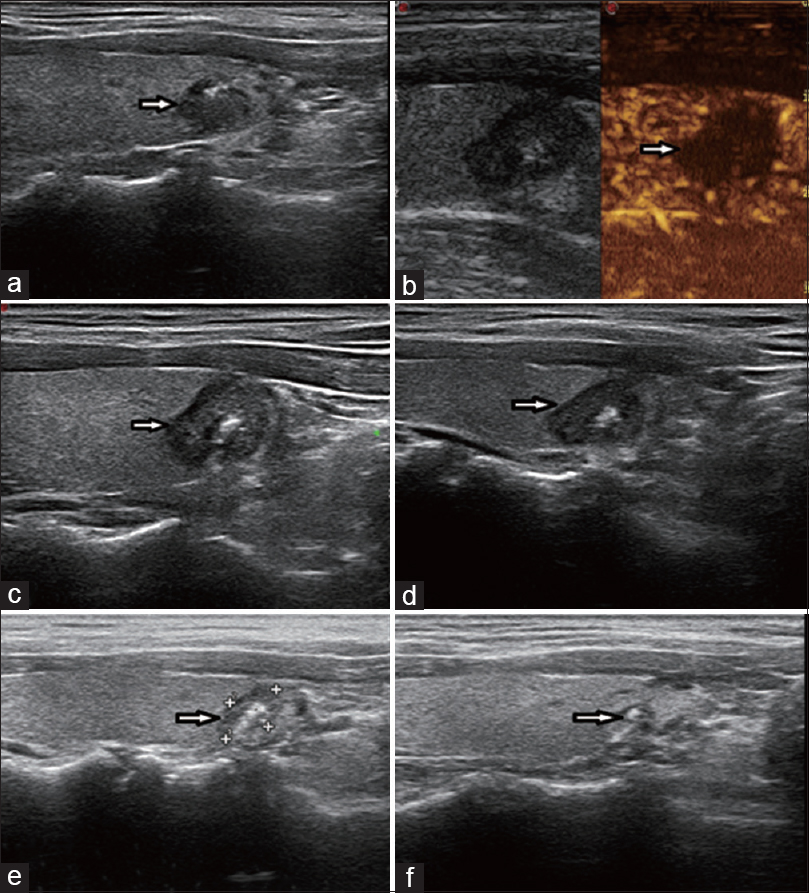Figure 1: The thermal ablation treatment and follow-up visits for one case of papillary thyroid microcarcinoma. (a) PTMC lesion before ablation, (b) after ablation immediately, (c) 1 month after ablation, (d) 3 months after ablation, (e) 6 months after ablation, (f) 12 months after ablation