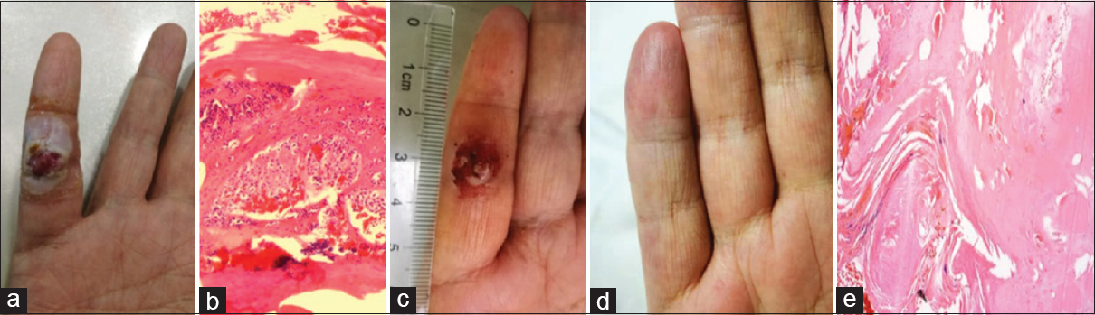 Figure 2: Evolution of patient 6 with RCHs, which appeared as tumor-like lesions. (a) RCHs appeared for the first time on the little finger, accompanied by pain and bleeding 6 weeks after camrelizumab. (b) Histology performance: chronic inflammatory cell infiltration and hyperkeratosis of skin tissue at 100 × magnification. (c) RCHs regressed after application of apatinib for 2 weeks. (d) RCHs disappeared after application of apatinib for 1 month. (e) Nodular hyperplasia of collagen fiber, local granulation tissue can be seen at 100 × magnification