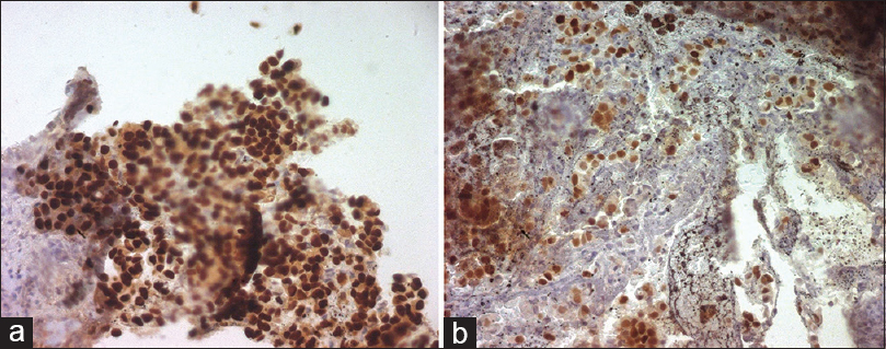 Figure 4: Parotid: large and intense immunostain with anti-estrogen receptors antibody (a) and antiprogesterone antibody (b) the nuclei of the malignant cell are highlighted in brown