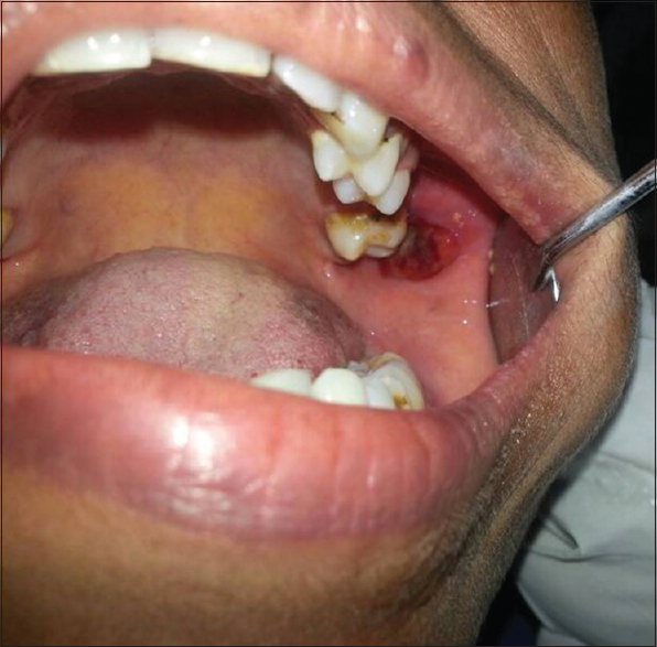 Figure 1: Clinical photograph showing pedunculated erythematous mass on the left posterior buccal mucosa
