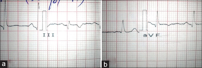 Figure 2: Electrocardiography showing T-wave inversion in lead III (a) and lead avf (b)