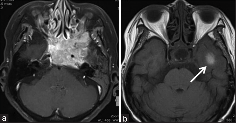Figure 1: (a) Contrast magnetic resonance imaging T1-weighted image showed a strongly enhanced neoplastic lesion primarily at the left sphenoid sinus. (b) Magnetic resonance imaging T1-weighted image shows a high-intensity lesion (arrow) in the left temporal lobe right after second intra-arterial infusion chemotherapy