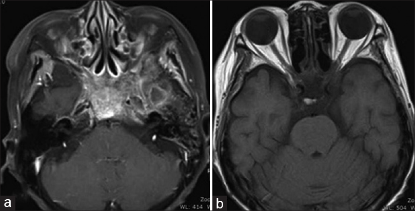Figure 4: (a) Contrast magnetic resonance imaging T1-weighted image performed 2 months after completion of treatment showed disappearance of the enhanced lesion at the left sphenoid sinus. (b) Magnetic resonance imaging T1-weighted image is not able to detect the suspected hematoma in the left temporal lobe 2 month after the treatment