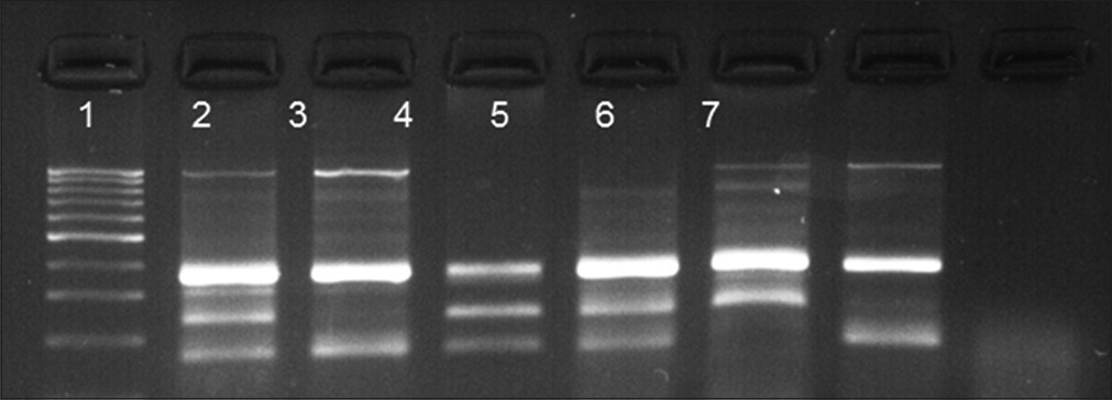 Figure 1: Tetra-primer amplification refractory mutation system-polymerase chain reaction fragments on gel electrophoresis. lane 1, 100 bp ladder, lanes 1, 4, and 5 present AG genotype, lanes 3 and 7 indicate GG genotype, and lane 6 shows AA genotype