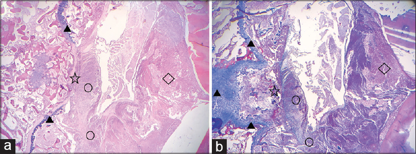 Figure 6: Group B and D postoperative pathological sections. Growing cells destroy the bone cortex, grow into the spinal canal, and invade the spinal cord. (a) H and E staining. (b) Masson's trichrome staining (▴ vertebral cortex; ☆ vertebral cortical destruction; ○ tumor cells; ◊ spinal cord)