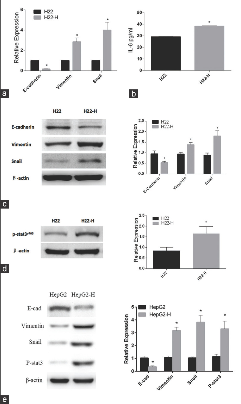 Figure 1: Epithelial–mesenchymal transition after insufficient heat treatment. (a) E-cadherin, vimentin, and Snail in H22 and H22-H cells. (b) Interleukin-6 expression changes after heat treatment in H22 cells. (c-e) E-cadherin, vimentin, Snail, and phosphorylation of signal transducer and activator of transcription 3 at Tyr705 in H22 and H22-H groups, and HepG2 and HepG2-H groups