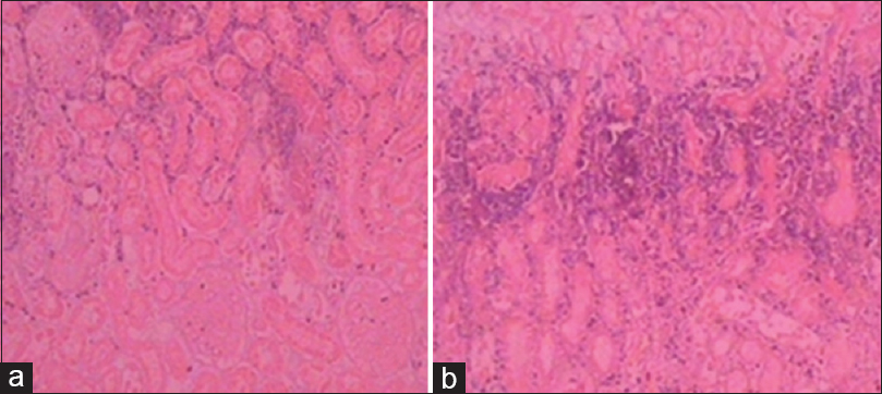 Figure 16: (a) At 4 days after embolization, glomerular structure had changed in the gelatin microsphere group. (b) At 4 days after embolization, glomerular structure had changed in the TAGM group (HE staining magnification 10×10)