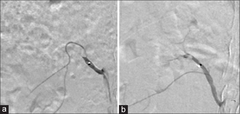 Figure 5: (a) At 1 day after TAGM embolization, renal artery angiography showed renal artery trunk truncation in the nephrographic phase. (b) At 4 days after TAGM embolization, renal artery angiography showed renal artery trunk truncation in the nephrographic phase