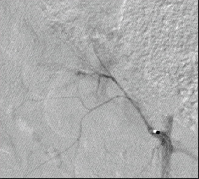 Figure 6: At 7 days after TAGM embolization, renal artery angiography showed renal artery trunk truncation in the nephrographic phase