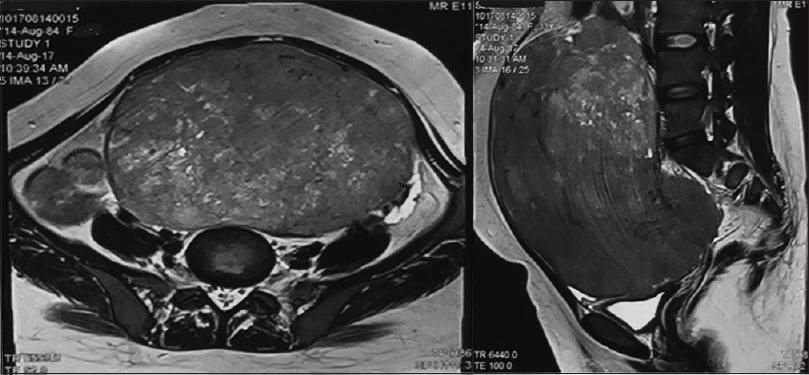 Figure 1: Magnetic resonance imaging abdomen and pelvis showing a solid mass 18 cm × 16 cm × 11 cm in abdominopelvic region. The mass is separate from vagina. Also showing lower part of vagina which ends blindly